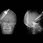 Knives X-Ray