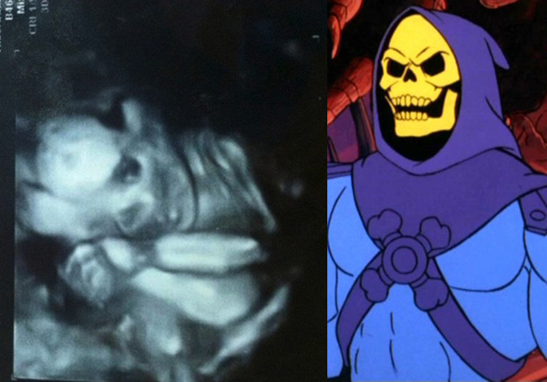 Skeletor Ultrasound