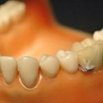 Teeth Probe