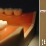 Teeth Probe 2