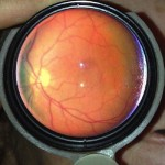 EyeGo Adapter – Smartphone Eye Exam