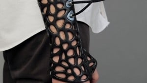 Ultrasound 3D Printed Cast