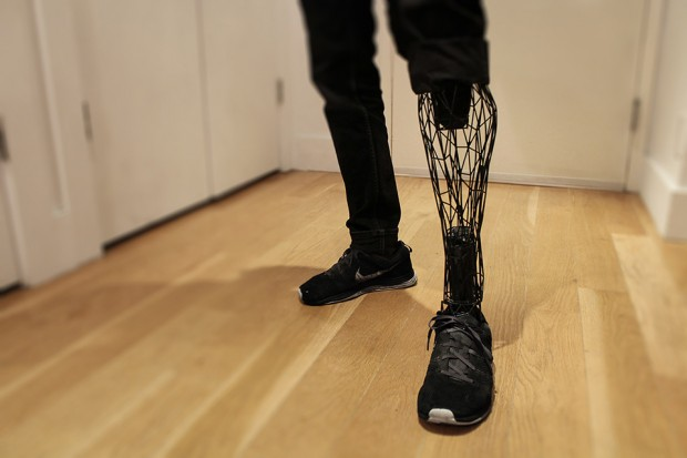 exo_3d_printed_prosthetic_leg
